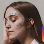effetto filler su ragazza filtro botox Instagram